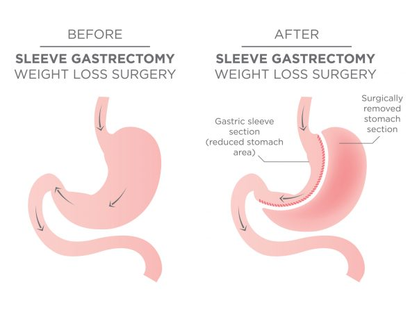 sleeve-gastrectomy-4c
