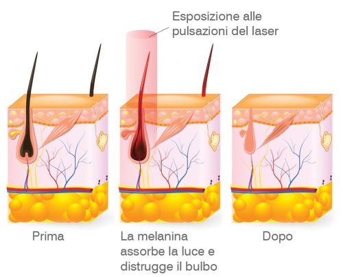 epilazione-laser-foto